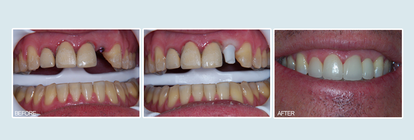 aliso woods dental implants